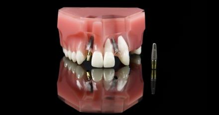 מה עדיף? השתלת שיניים או שיניים תותבות?